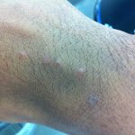  bedbug bites from Super 8 Bloomington!