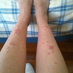  bites in legs