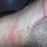 my husbands rash :(