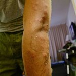 Bed bug bites all over the arms, neck, and
