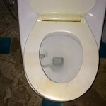Toilet seat issues