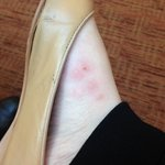 Bug bites on my foot that appeared over night