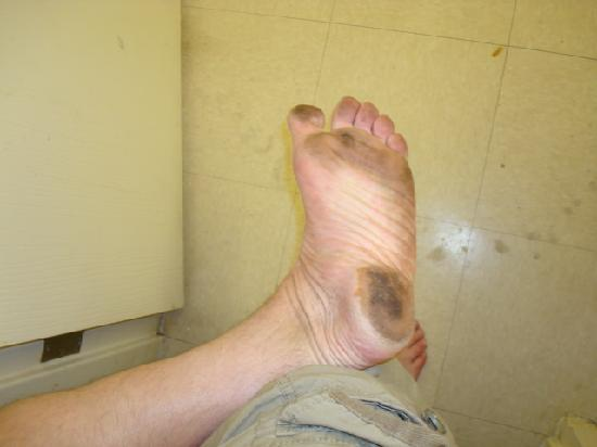 Sun Suites Of Jacksonville: I walked ten feet, from my bed to Shower....This is what my feet look like in ten feet.
