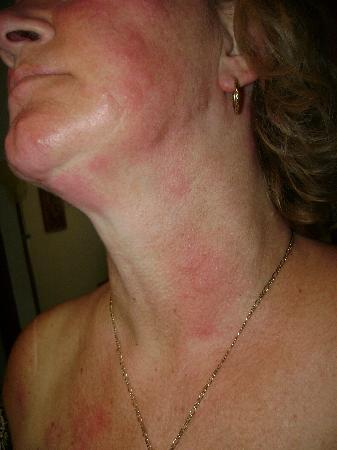 Bed Bug Bites On Face And Neck Major Rash Picture Of