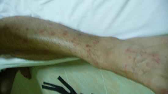 New Road Guest House: Leg covered in bed bug bites, apols for quality
