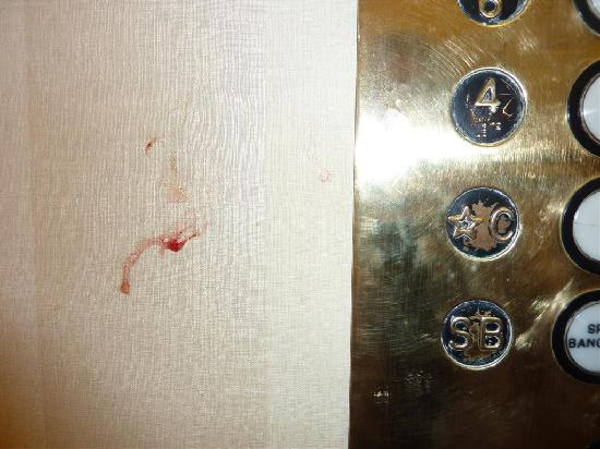 Cal-Neva Resort Spa and Casino: Coughed-up blood in the elevator