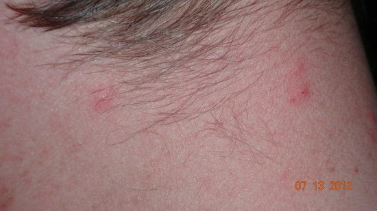Doubletree Suites by Hilton Hotel & Conference Center Chicago / Downers Grove: HILTON Bed Bugs4