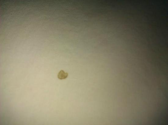 Hampton Inn Silver Spring: blood stain on pillow