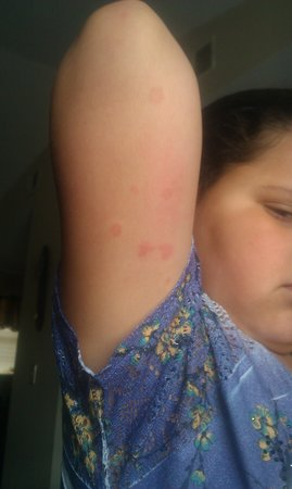 James Manor: my daughter got bed bugs at this hotel