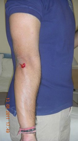 Ibis Valencia Palacio de Congresos: The injury that i suffered due to the bathroom incident