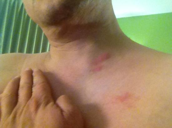 Crestwood Suites Denver - Aurora: More bite marks on my chest and neck..