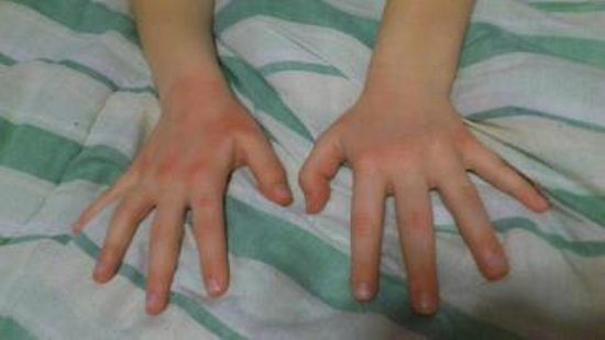 Adoba Hotel:                   My daughter&#39;s hands after washing with hotel provided soap in the room