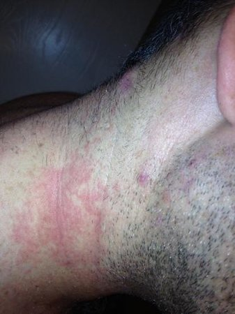 BEST WESTERN PLUS Inner Harbour:                   my husbands rash :(