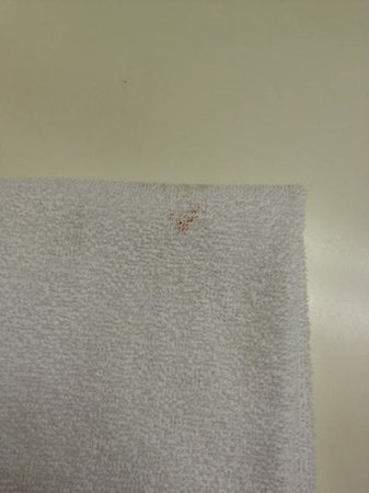 Comfort Inn &amp; Suites South: blood on a &quot;clean&quot; towel