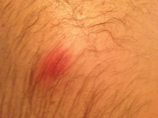 Foot of the Mountain Motel: Another bed bug bite
