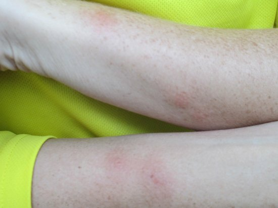 Holiday Inn Express Braintree: Bed Bug Bites