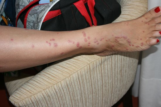 My Leg With Bed Bug Bites Picture Of Gran Hotel Del