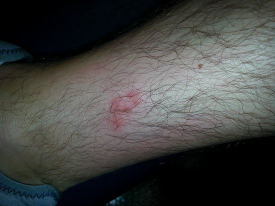 Insect bites on legs - photo#23