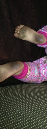 Metairie, LA: Baby's feet from walking on the nasty carpet after only 1 hour!