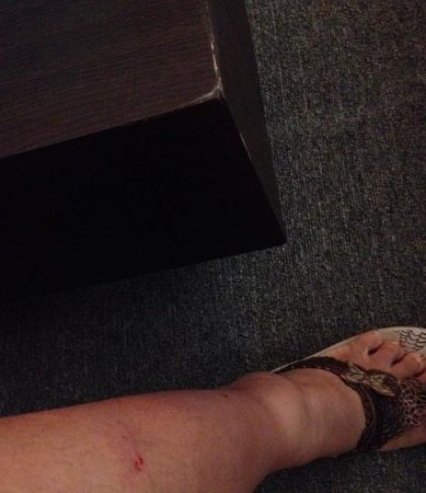 Greenhills Elan Hotel Modern: Bad bed corners that can result to wounds and bruises to your legs