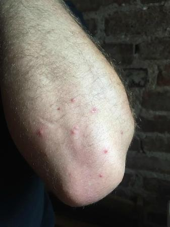 Metropole Hotel: Bed bug bites from Hotel Metropole