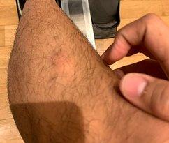 bites on left leg