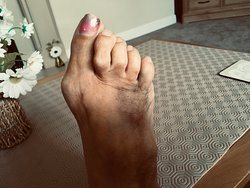 Damage to my foot.