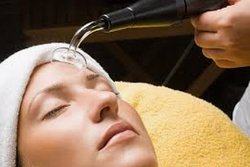 High frequency facials for acne and aging
