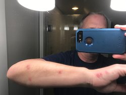 Bed Bugs bites from HILTON PALM BEACH AIRPORT, Dec. 2, 2019; Do not stay at this property, it is terrible!