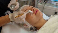 Application of a Sesderma facial peel