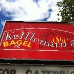 Kettleman sign
