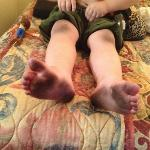 bottom of his feet & knees dirty from carpet
