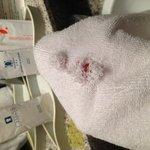 agujeros en la toalla del baño