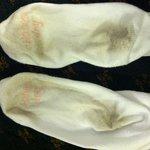 Socks after walking on carpet