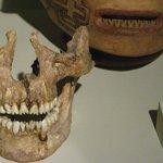 Atente para os detalhes dos dentes, na caveira e no vaso