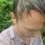 cut on my head