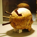 A skull from the Battle of Gotland