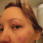 Humiliating: facial bedbug bites