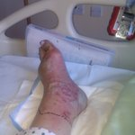 This is what happened when I cut my toe at Longleat in the swimming area! 13 days of IV antiobio