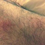 Bed bug bites on my leg