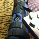Fracture knee on trip