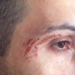 Ustione di primo grado (first-degree burn) durante un trattamento viso alla Stock Diamond SPA.