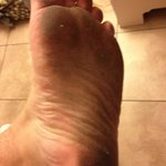 Foot after 20 mins in room.