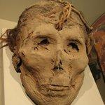 Mumificação com boca presa e furo na cabeça