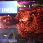 Blood vessel man