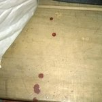 unexplained blood possibly from nail under desk