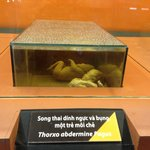 Fetus died from agent orange :(