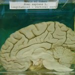Human brain on view