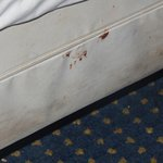 This is the mattress with BLOOD and STAIINS