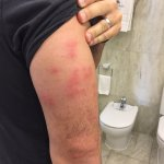 Bed bug reaction the night after my stay at Relais de Franc Mayne - day staff tried to ignore th
